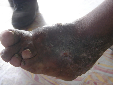 欧美性吧老妇野外干_老妇人的脚疑似感染蜂窝性组织炎,严重变形.